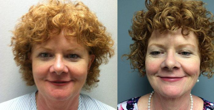 Facelift Patient 5   Dr. Shaun Parson Plastic Surgery Scottsdale Arizona