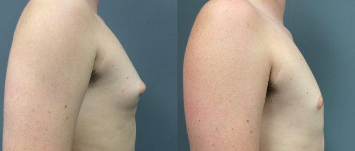 Gynecomastia Patient 9 | Dr. Shaun Parson Plastic Surgery Scottsdale Arizona