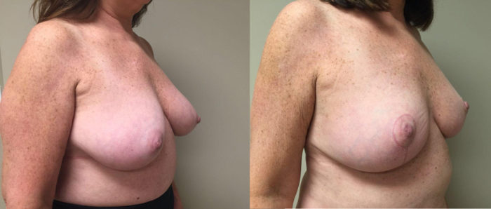 Breast Lift Patient 13 | Dr. Shaun Parson Plastic Surgery Scottsdale Arizona