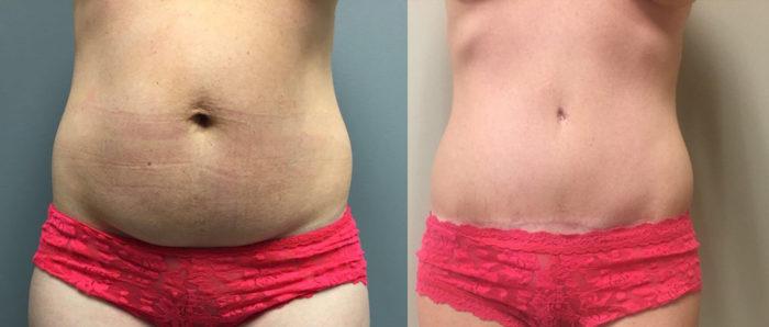 Tummy Tuck Patient 18b | Dr. Shaun Parson Plastic Surgery Scottsdale Arizona