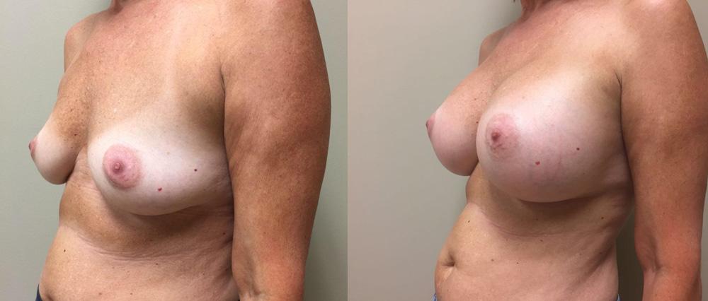 Breast Augmentation Patient 24 | Dr. Shaun Parson Plastic Surgery Scottsdale Arizona