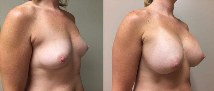 Breast Augmentation Patient 25 | Dr. Shaun Parson Plastic Surgery Scottsdale Arizona