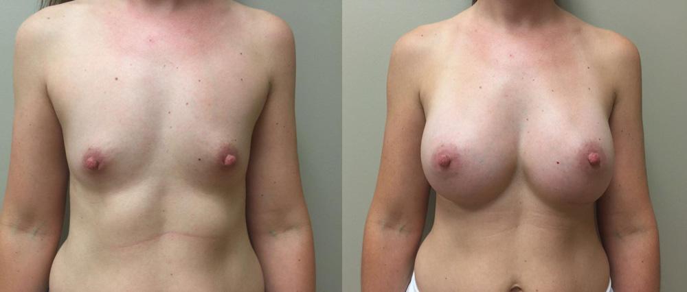 Breast Augmentation Patient 26b | Dr. Shaun Parson Plastic Surgery Scottsdale Arizona