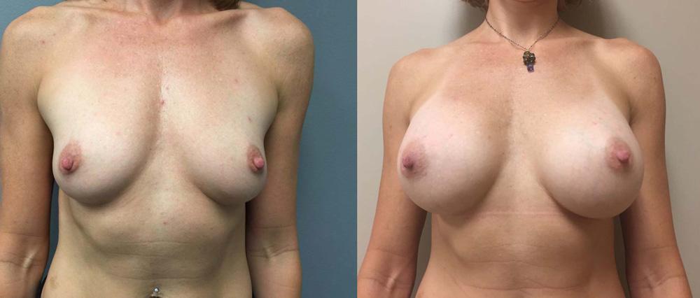 Breast Augmentation Patient 27b | Dr. Shaun Parson Plastic Surgery Scottsdale Arizona
