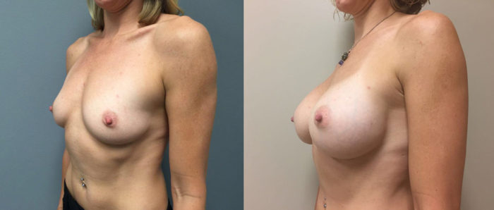 Breast Augmentation Patient 27a | Dr. Shaun Parson Plastic Surgery Scottsdale Arizona