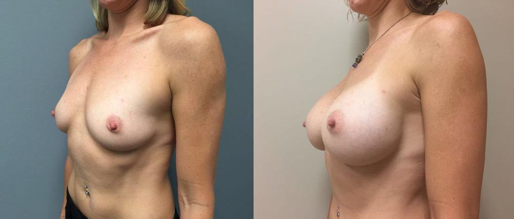 Breast Augmentation Patient 27a | Dr. Shaun Parson Plastic Surgery Scottsdale Arizona