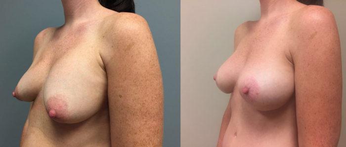 Breast Lift Peri Aug Patient 31b | Dr. Shaun Parson Plastic Surgery Scottsdale Arizona