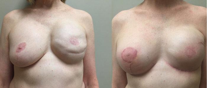 Breast Revision Patient 8a | Dr. Shaun Parson Plastic Surgery, Scottsdale, Arizona