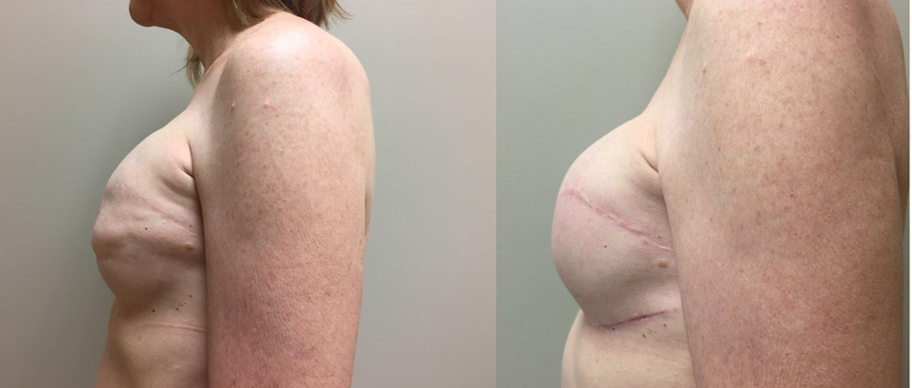 Breast Revision Patient 8a | Dr. Shaun Parson Plastic Surgery, Scottsdale, Arizona