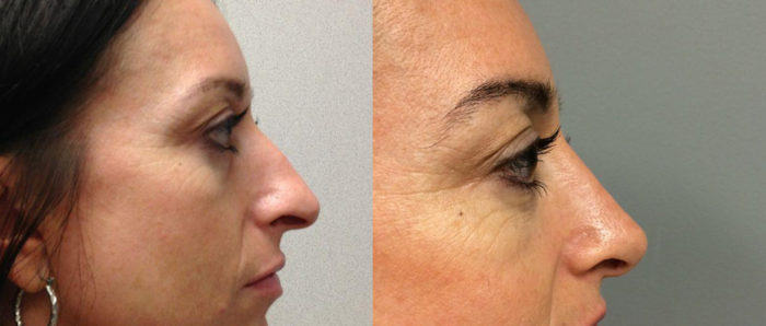 Rhinoplasty Patient 7 | Dr. Shaun Parson Plastic Surgery, Scottsdale, Arizona