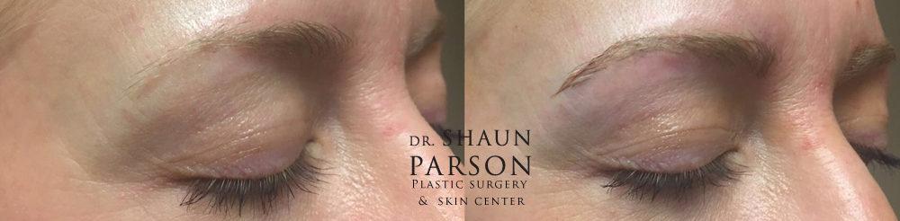 Microblading Patient 1 | Dr. Shaun Parson Plastic Surgery Scottsdale Arizona