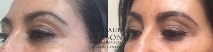 Microblading Patient 3 | Dr. Shaun Parson Plastic Surgery Scottsdale Arizona
