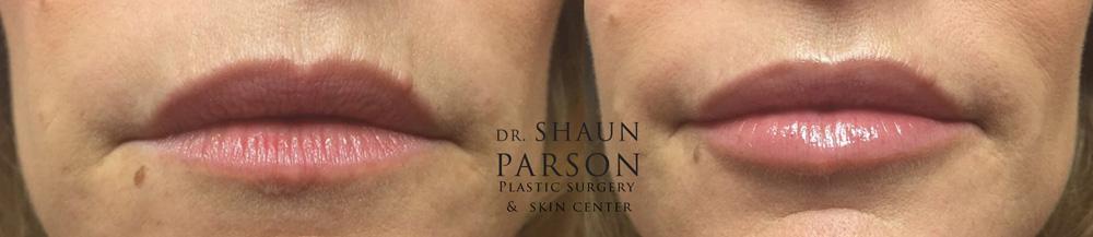 Dermal Filler Patient 5 | Dr. Shaun Parson Plastic Surgery Scottsdale Arizona