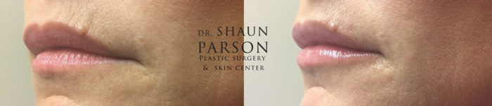 Dermal Filler Patient 5b | Dr. Shaun Parson Plastic Surgery Scottsdale Arizona