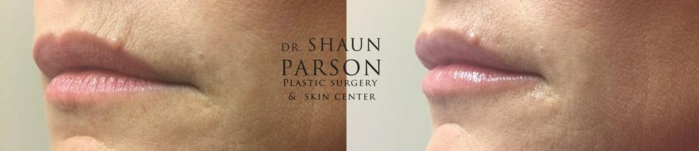 Dermal Filler Patient 5b | Dr. Shaun Parson Plastic Surgery Scottsdale Arizona