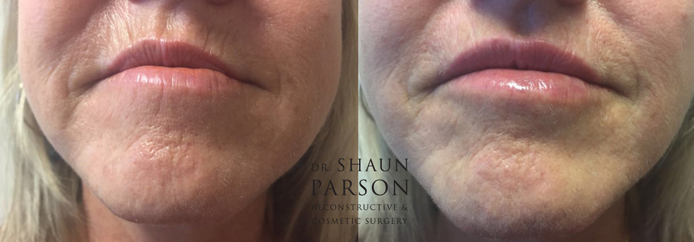 Dermal Filler Patient 4 | Dr. Shaun Parson Plastic Surgery Scottsdale Arizona