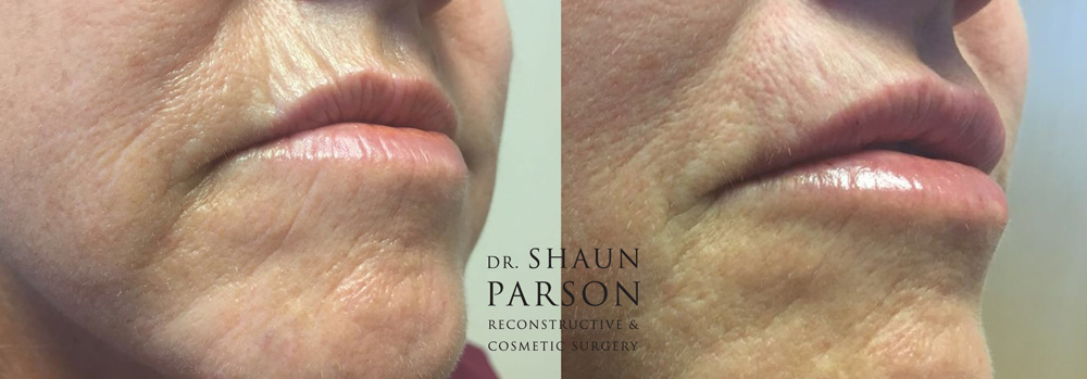 Dermal Filler Patient 4b | Dr. Shaun Parson Plastic Surgery Scottsdale Arizona