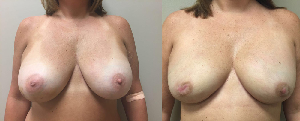 Breast Reconstruction Patient 14 | Dr. Shaun Parson Plastic Surgery Scottsdale Arizona