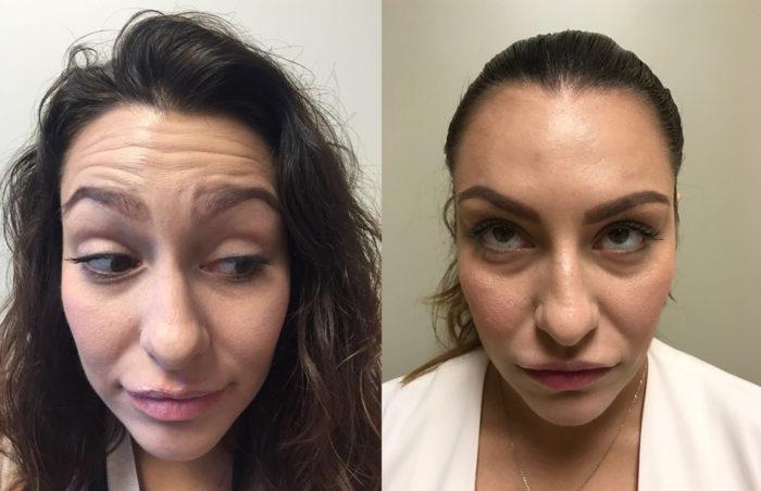 Botox Patient 4 | Dr. Shaun Parson Plastic Surgery Scottsdale Arizona