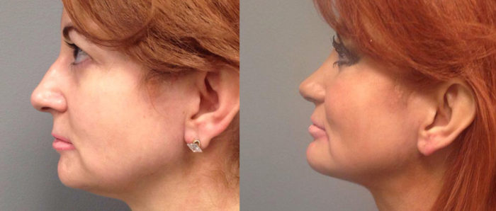 Rhinoplasty Patient 8 | Dr. Shaun Parson Plastic Surgery Scottsdale Arizona