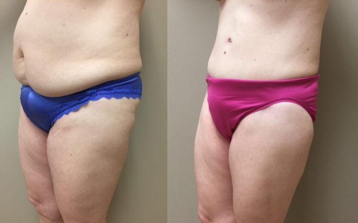 Tummy Tuck Patient 20 | Dr. Shaun Parson Plastic Surgery Scottsdale Arizona