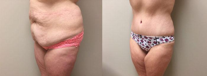 Tummy Tuck Patient 22 | Dr. Shaun Parson Plastic Surgery Scottsdale Arizona
