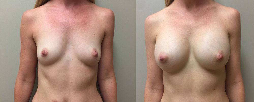 Breast Augmentation Patient 28 | Dr. Shaun Parson Plastic Surgery, Scottsdale, Arizona