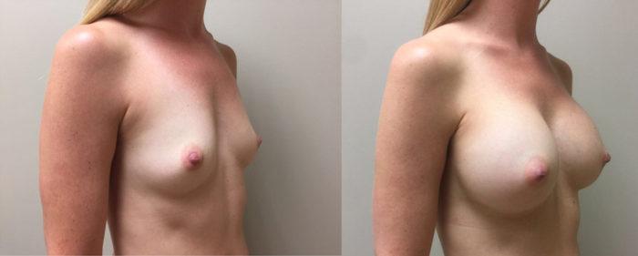 Breast Augmentation Patient 28 | Dr. Shaun Parson Plastic Surgery, Scottsdale, Arizona