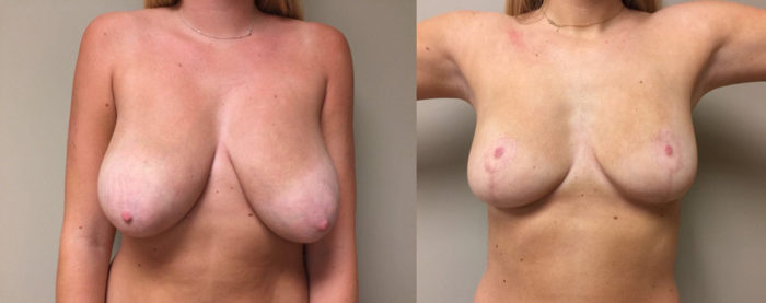 Breast Lift Patient 15 | Dr. Shaun Parson Plastic Surgery Scottsdale Arizona