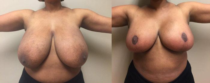 Breast Lift Patient 14 | Dr. Shaun Parson Plastic Surgery Scottsdale Arizona