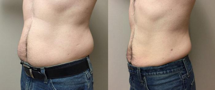 Liposuction Patient 14 | Dr. Shaun Parson Plastic Surgery Scottsdale Arizona
