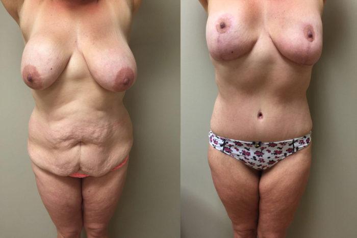 Mommy Makeover Patient 3 | Dr. Shaun Parson Plastic Surgery Scottsdale Arizona
