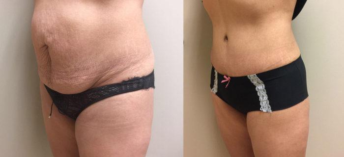 Tummy Tuck Patient 21 | Dr. Shaun Parson Plastic Surgery Scottsdale Arizona