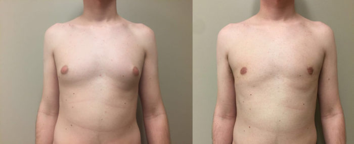 Gynecomastia Patient 11 | Dr. Shaun Parson Plastic Surgery Scottsdale Arizona