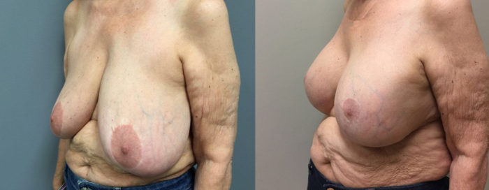 Breast Lift with Aug Patient 17 | Dr. Shaun Parson Plastic Surgery Scottsdale Arizona