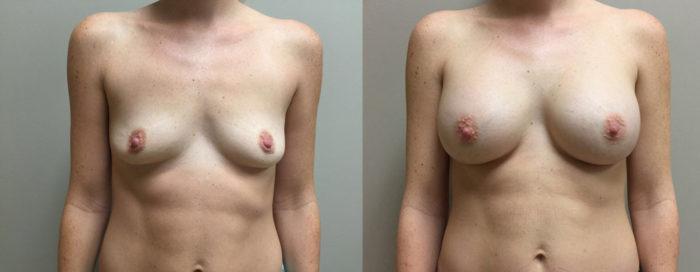 Breast Augmentation Patient 29 | Dr. Shaun Parson Plastic Surgery Scottsdale Arizona