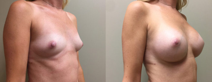 Breast Augmentation Patient 30 | Dr. Shaun Parson Plastic Surgery, Scottsdale, Arizona