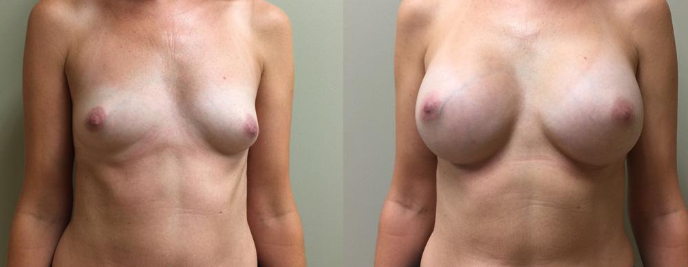 Breast Augmentation Patient 30 | Dr. Shaun Parson Plastic Surgery, Scottsdale, Arizona