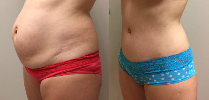 Tummy Tuck Patient 23 | Dr. Shaun Parson Plastic Surgery Scottsdale Arizona