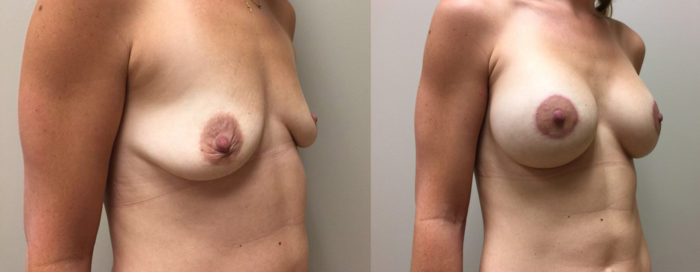 Breast Lift Peri Aug Patient 32 | Dr. Shaun Parson Plastic Surgery Scottsdale Arizona