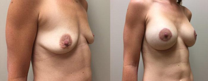 Breast Lift Peri Aug Patient 32 | Dr. Shaun Parson Plastic Surgery Scottsdale Arizona