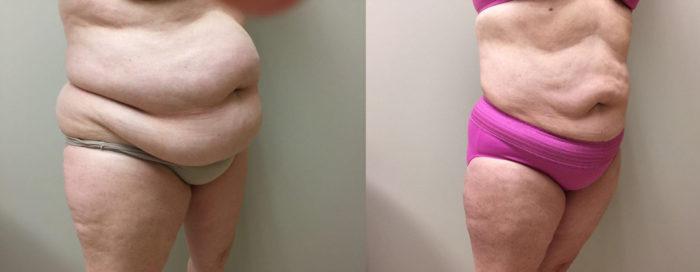 Liposuction Patient 15   Dr. Shaun Parson Plastic Surgery, Scottsdale, Arizona