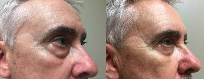 Eyelid Surgery Patient 20   Dr. Shaun Parson Plastic Surgery, Scottsdale, Arizona