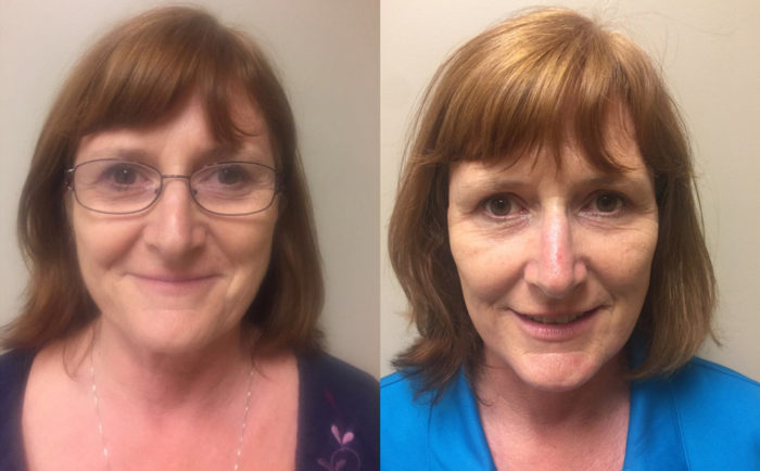 Facelift Patient 17 | Dr. Shaun Parson Plastic Surgery Scottsdale Arizona