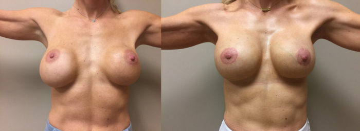 Breast Revision Patient 9 | Dr. Shaun Parson Plastic Surgery, Scottsdale, Arizona