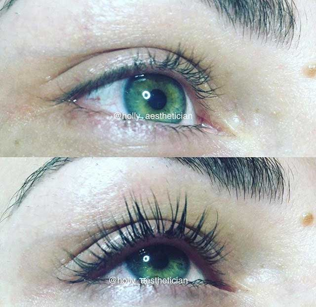 Eyelash Perm and Tint Patient 3 | Parson Skin Center Scottsdale