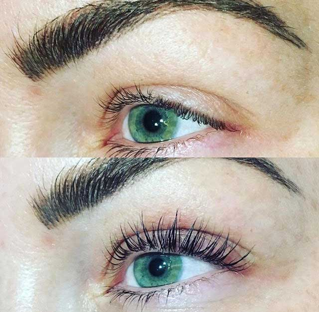 Eyelash Perm and Tint Patient 4 | Parson Skin Center and MediSpa, Scottsdale