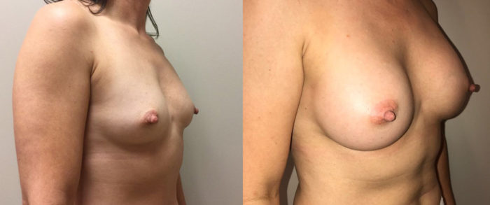 Breast Augmentation Patient 31 | Dr. Shaun Parson Plastic Surgery, Scottsdale, Arizona
