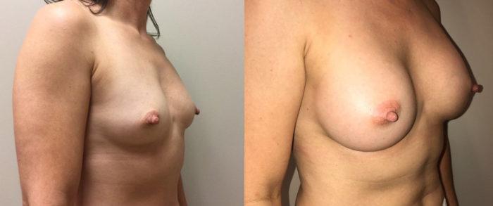 Breast Augmentation Patient 31 | Dr. Shaun Parson Plastic Surgery, Scottsdale, Arizona