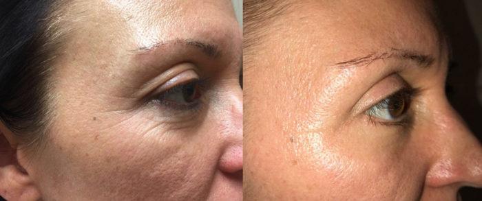 Eyelid Surgery Patient 22   Dr. Shaun Parson Plastic Surgery, Scottsdale, Arizona